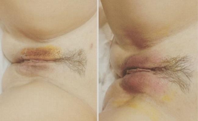 интимная пластика филлерами фото до и после