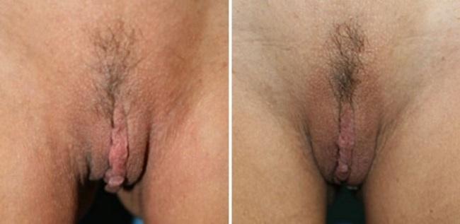 Интимная контурная пластика фото до и после