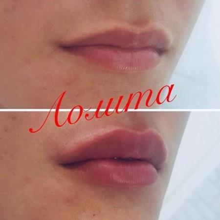 увеличение губ фото до и после отзывы