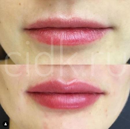 увеличение тонких губ фото