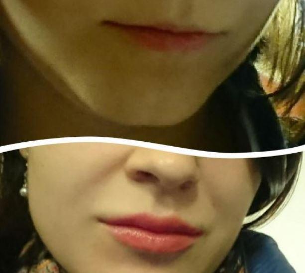 увеличение губ фото до и после отзывы гиалуроновой кислотой отзывы фрир