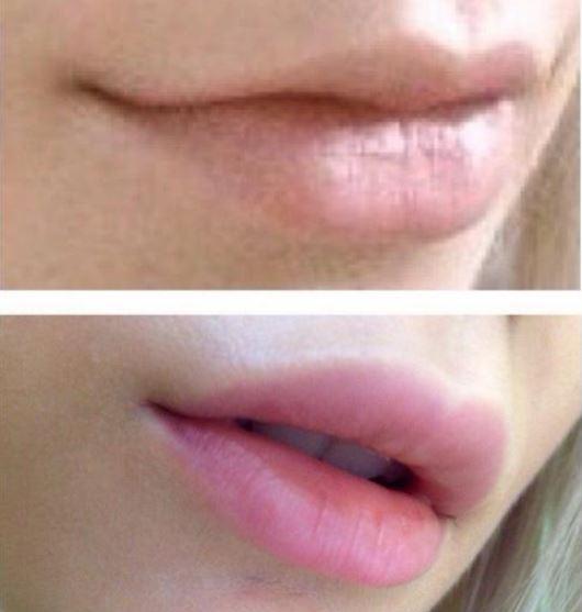 увеличение губ отзывы